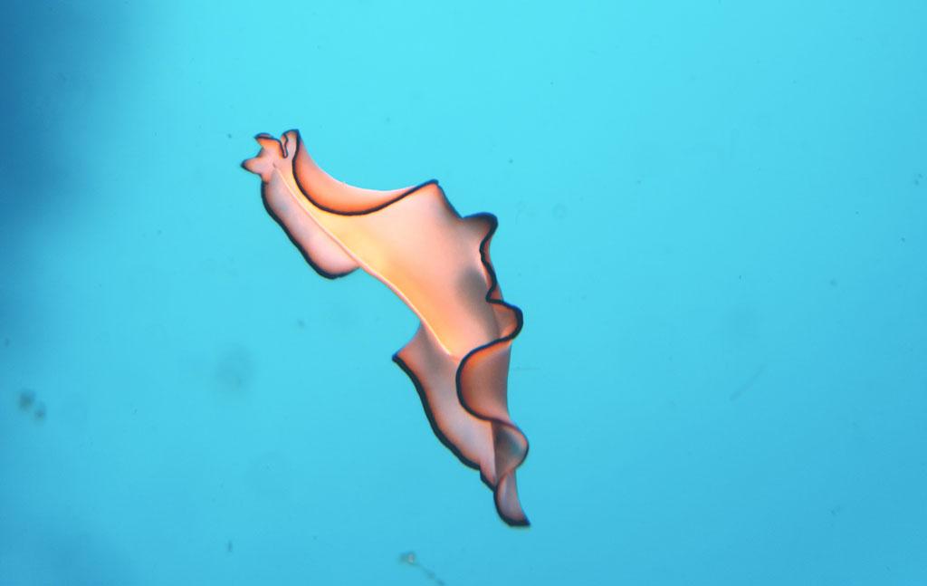 flatworm-orsaki